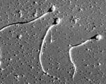 СЕКСУАЛНО ЗДРАВЕ Sperms(1)