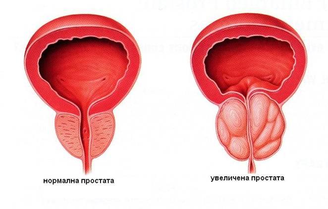 лечение эхо простатита